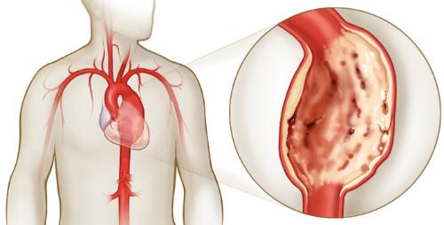 Сердечная аневризма