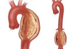 Разрыв аневризмы грудного отдела аорты