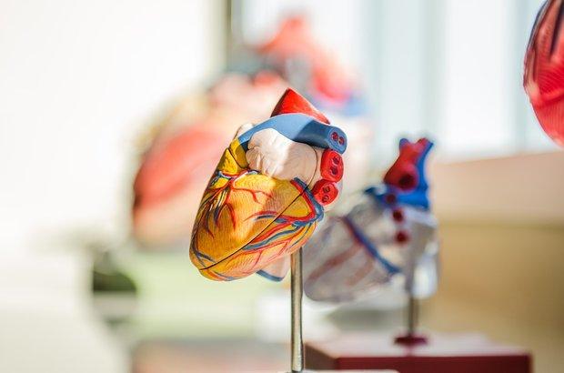 Все, что нужно знать об инфаркте