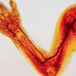 Атеросклероз сосудов рук