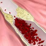 Лечение средствами народной медицины церебросклероза