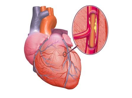 Течение ишемической болезни сердца