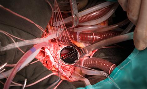Жизнь с искусственным клапаном сердца