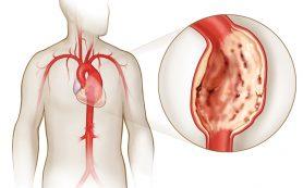 Методы лечения склероза аорты