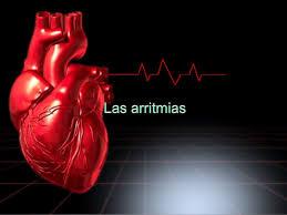 Что такое асистолия сердца