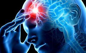 Хроническая сосудистая вертебрально-базилярная недостаточность (ВБН)