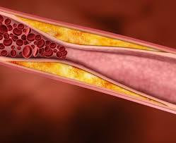 Современная жизнь как провокатор атеросклероза, или как защитить сосуды от холестерина