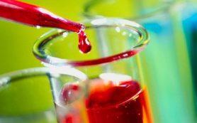 Как разжижать кровь и укрепить стенки сосудов: советы опытных врачей и целителей