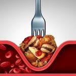 Чистка сосудов. Как избавиться от холестериновых бляшек