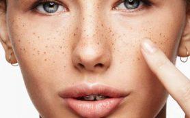 Причины появления пигментных пятен на коже и методы лечения