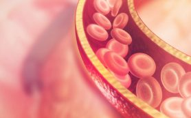 Как предотвратить тромбоз