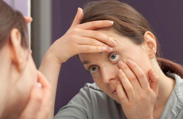 Какизбавиться отмешков подглазами