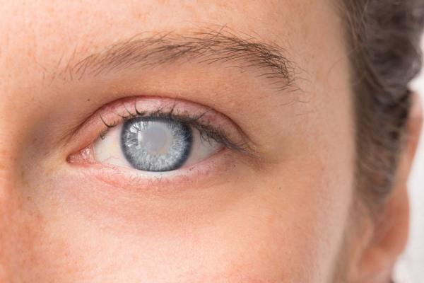 Глаза — ошибки рефракции: симптомы, причины, диагностика, лечение