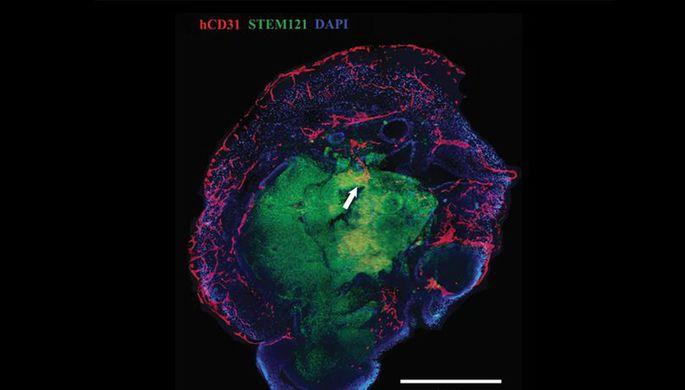 Ученые создали мини-мозг человека с кровеносными сосудами