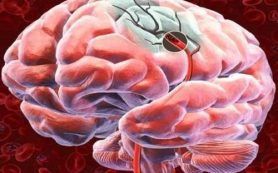 Здоровый образ жизни и правильное питание помогут омолодить сосуды головного мозга