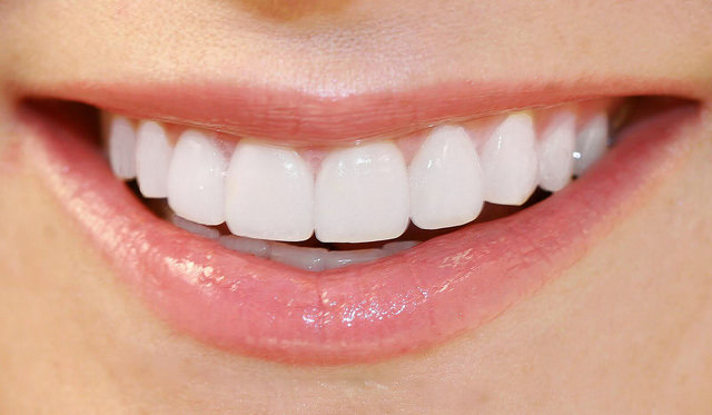 Стоматология. Косметическая стоматология подарит вам красивую улыбку