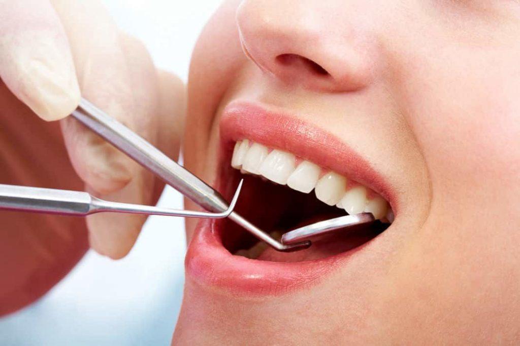 Кариес зуба (от лат. caries — гниение)