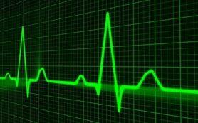 Женщины чаще умирают от сердечно-сосудистых заболеваний, чем мужчины