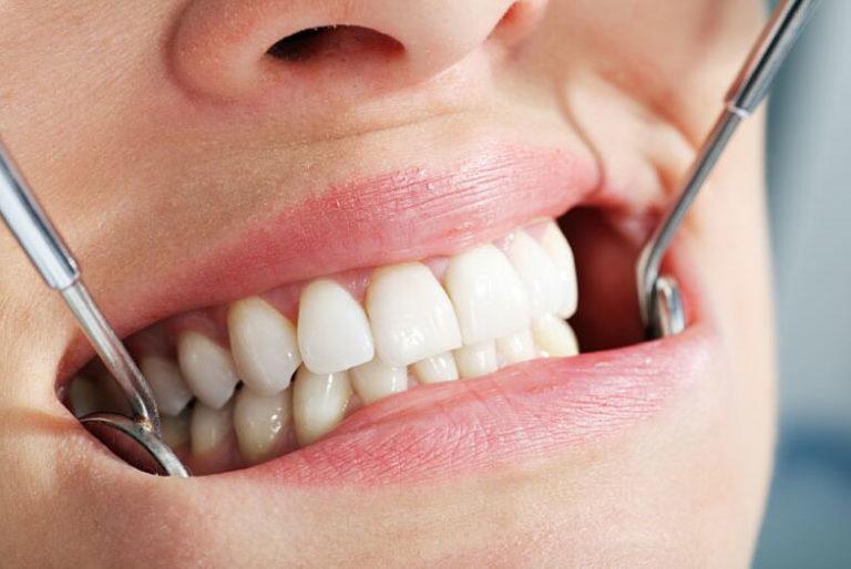 Несъемное протезирование зубов в стоматологии