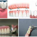 Протезирование зубов: плюсы и минусы разных методов