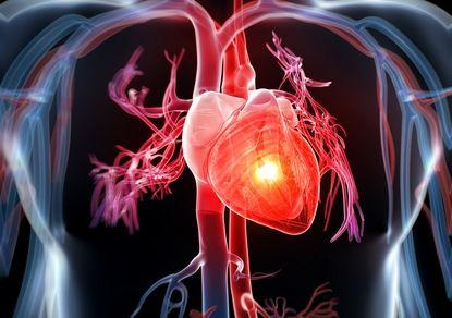 Ученые: на холоде шанс заработать инфаркт выше