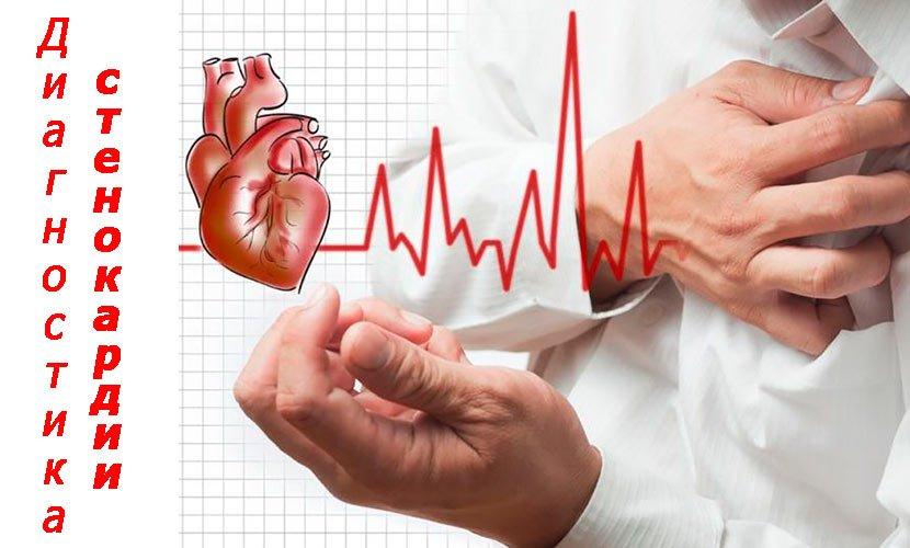 Диагностика стенокардии напряжения. Обязательные исследования