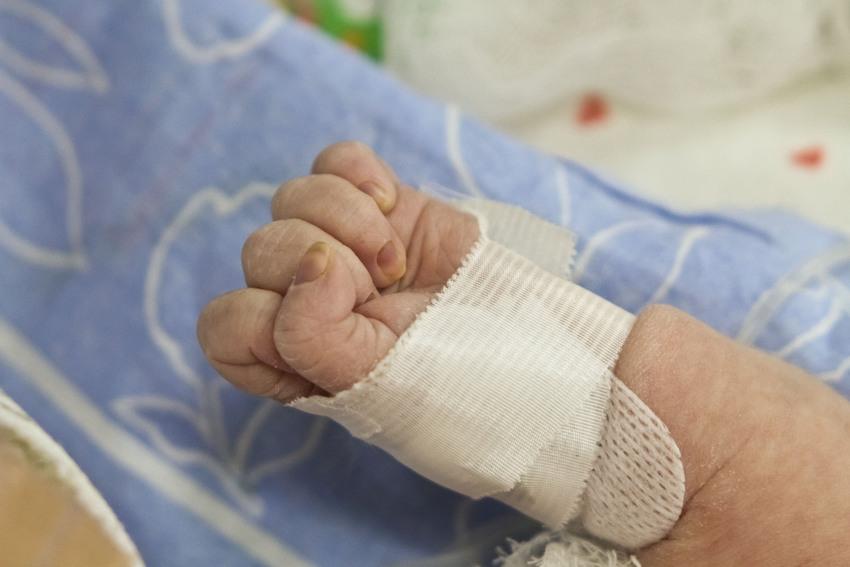 Сердце новорожденного на грани гибели в Тюмени оперировали с перерывом в месяц