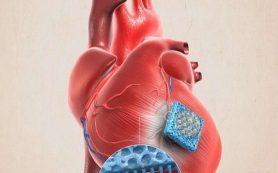 Микроигольный пластырь может помочь восстановить сердце после инфаркта