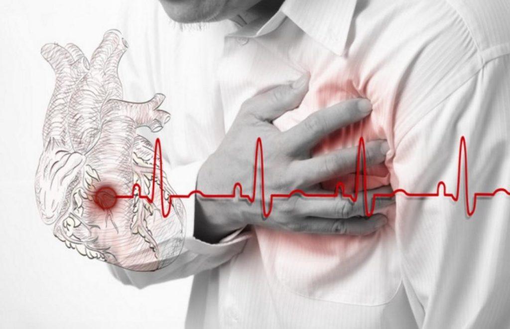 Как распознать инфаркт за месяц до его начала?