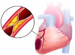 От инфаркта все больше страдают молодые