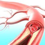 Механизмы возникновения давления в артериях