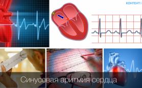 Нарушения сердечного ритма. Виды, причины и опасность аритмий