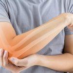 Ученые обнаружили в костях новый вид кровеносных сосудов, которые помогут бороться с артритом