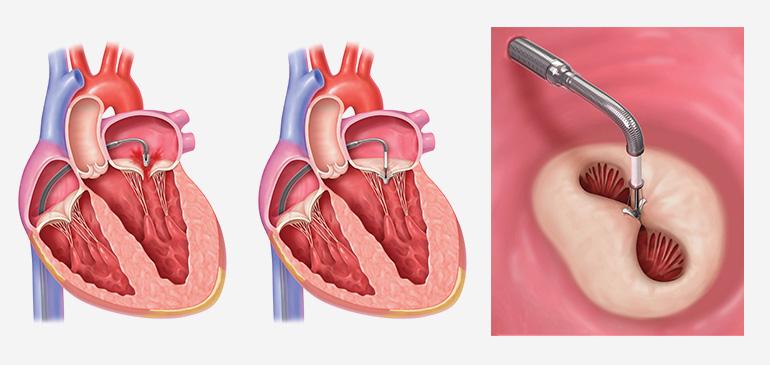 Аортальный клапан и его пороки