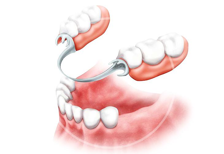 Съемное и несъемное протезирование зубов в Дзержинске: какой тип процедуры выбрать