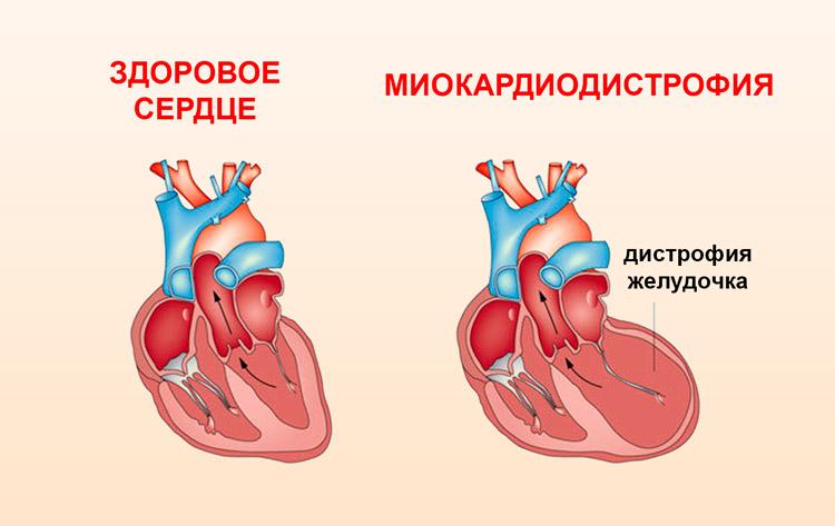 6 Основных добавок для здоровья сердца