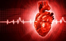 Выраженная синусовая аритмия сердца