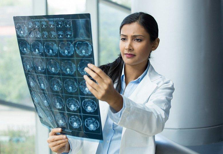 Рентгенография и томография при головной боли
