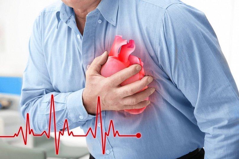 Трансмуральный инфаркт: причины, лечение, прогноз