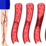 Врачи назвали семь признаков образования тромба