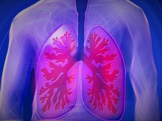 Право дышать: пациенты с редкой болезнью легких нуждаются в терапии