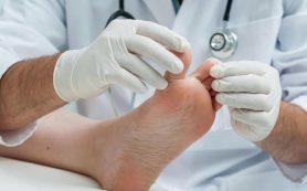 Почему болит косточка на ноге?