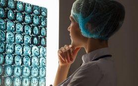 Что такое инсульт? Понятным языком о сложной проблеме