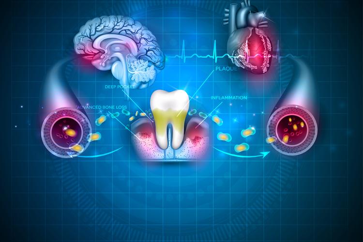 Сердечный приступ провоцируют бактерии полости рта