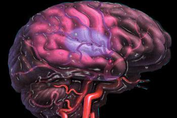 Как узнать, грозит ли вам гипотиреоз?