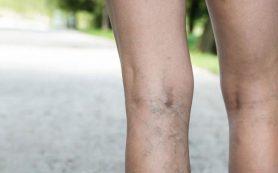 Причины и профилактика варикозного расширения вен на ногах