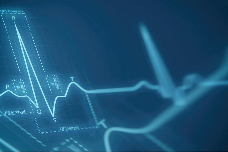 Мерцательную аритмию диагностируют без явных признаков на ЭКГ
