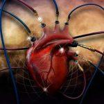 Санаторное лечение после инфаркта миокарда