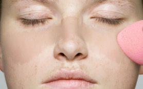 Пигментные пятна на лице: причины и избавление
