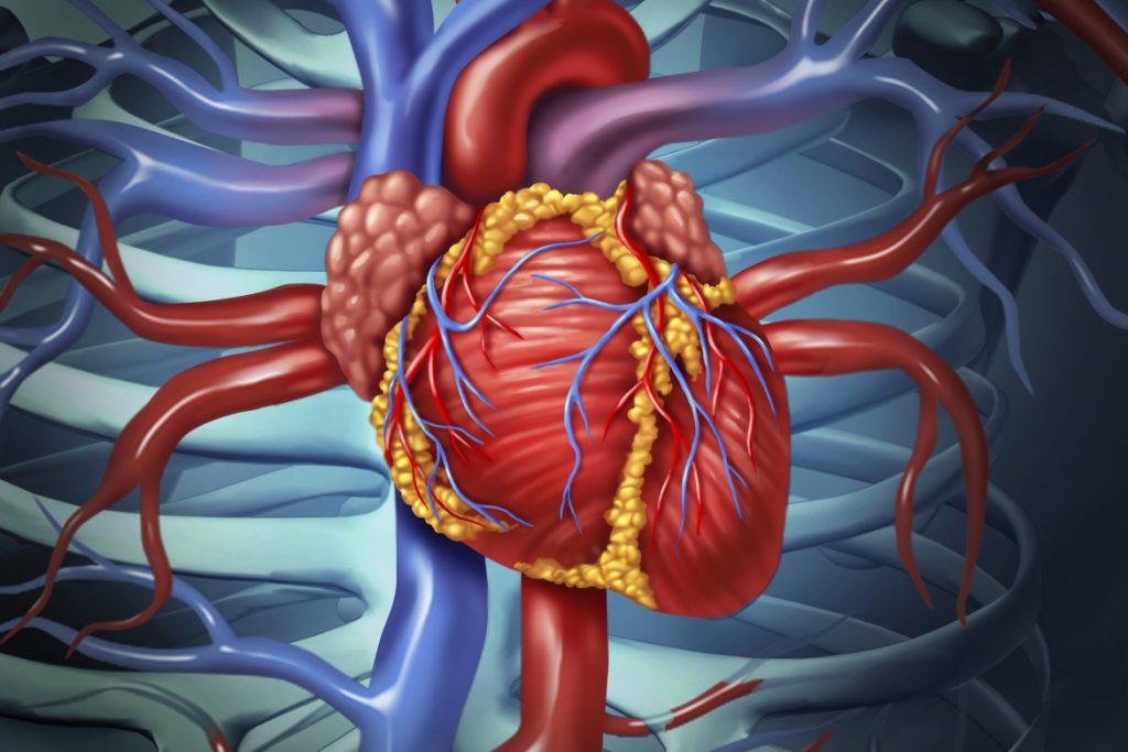 Как распознать ишемическую болезнь сердца
